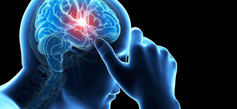 Artist rendering of a man with a headache.